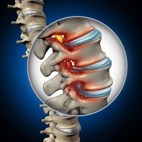 diskusprolaps kiropraktor vejle